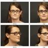 Avatar of laser hair removal Bellevue